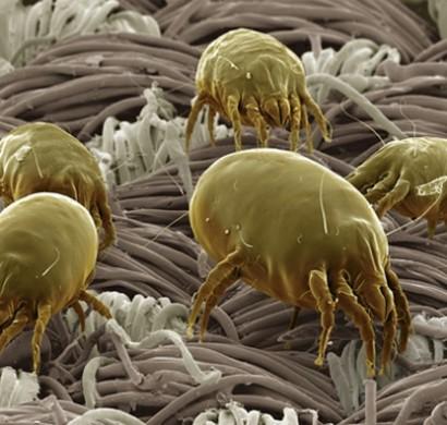 Was sind milben milben im bett bek mpfen - Wandfarben arten ...