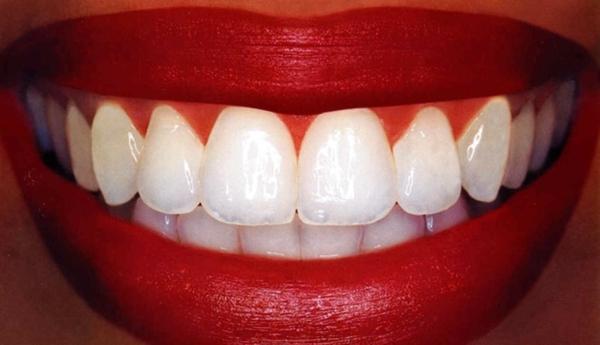weißere zähne bekommen zahnpflege