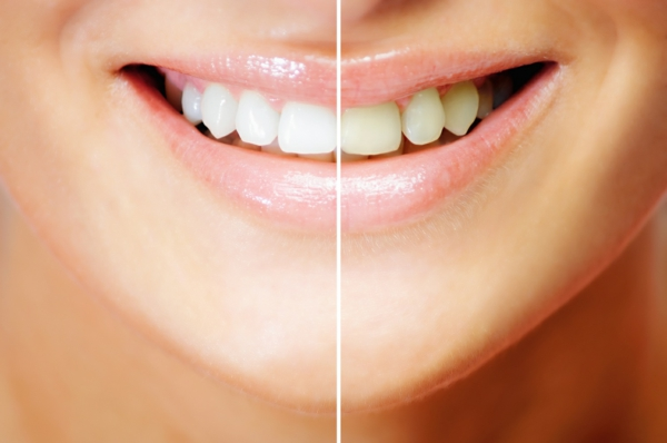 weißere zähne erhellen natürliche mittel