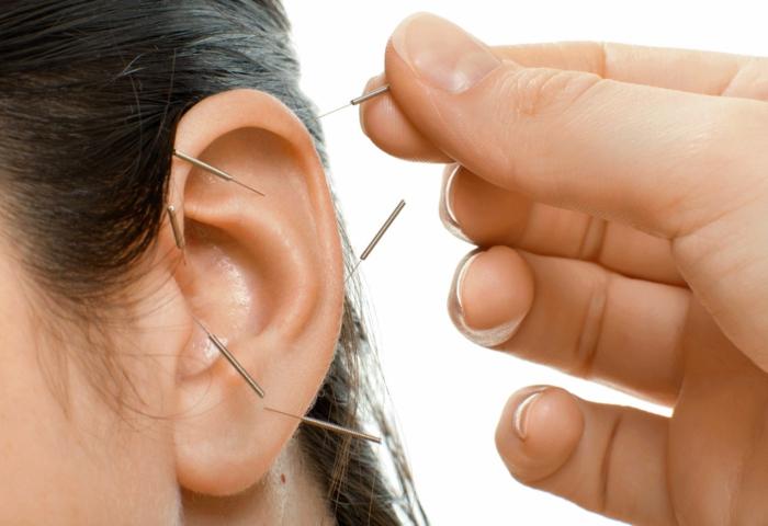 Abnehmen Akupunktur pünkte ohren bahandlung