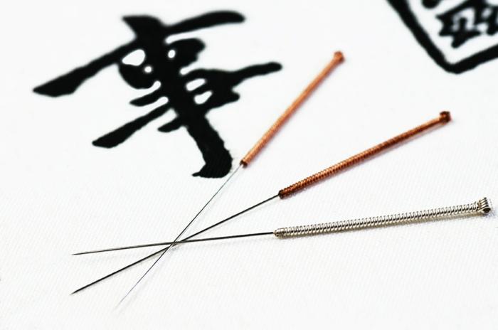 chinesische medizin Abnehmen Akupunktur nadeln