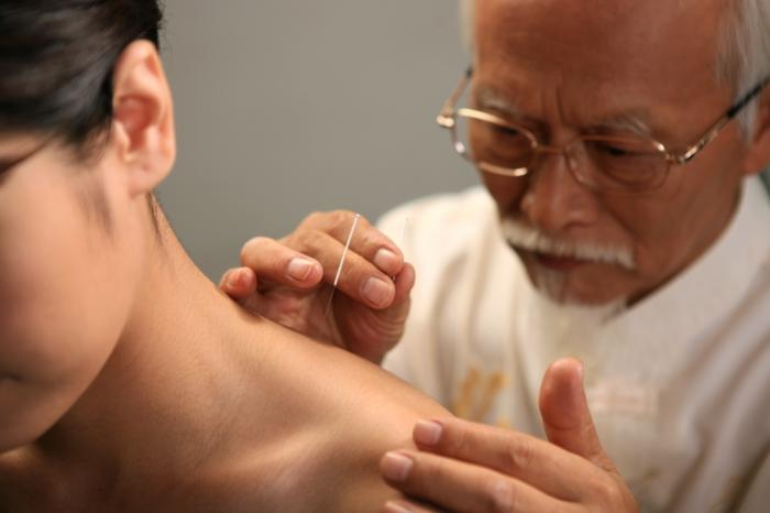 chinesische medizin Abnehmen Akupunktur pünkte