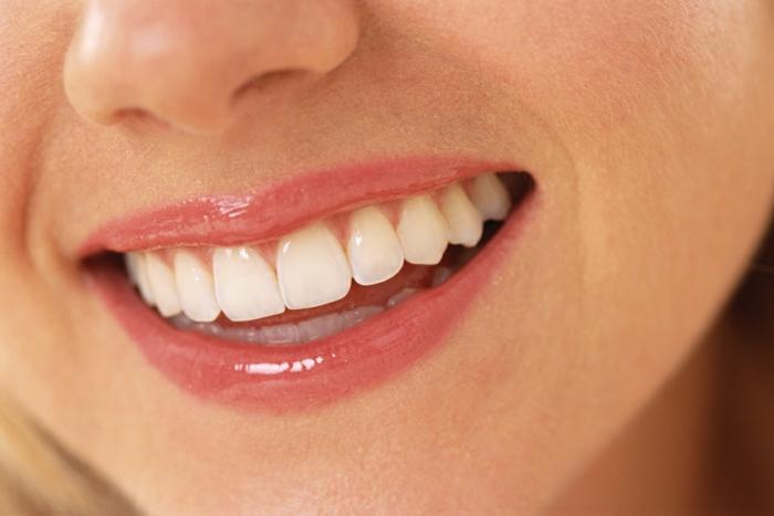karies symptome richtige zahnpflege schönes lächeln