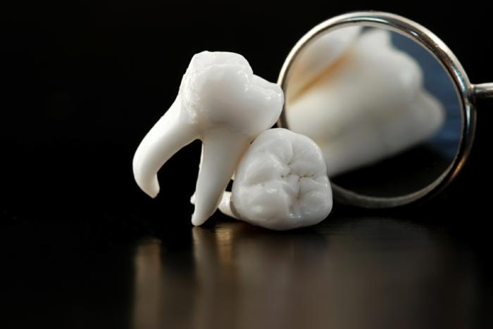 richtige zahnpflege karies vermeiden ursachen