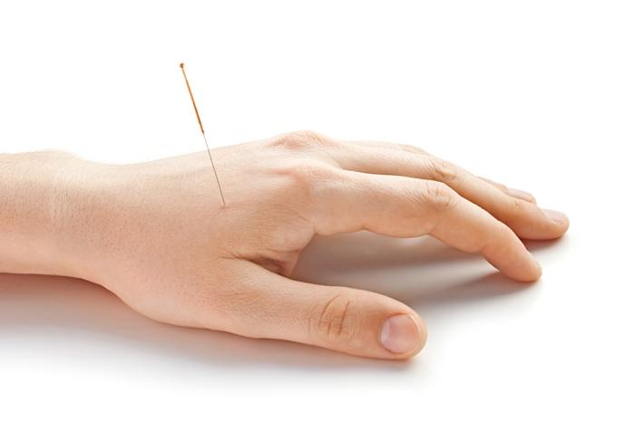 ständig kopfschmerzen tipps akupunktur lifestyle