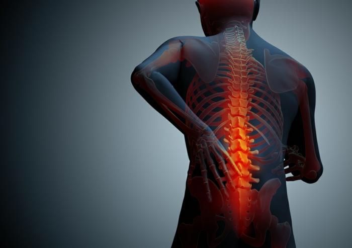 chronische schmerzen rückenschmerzen wirbelsäule