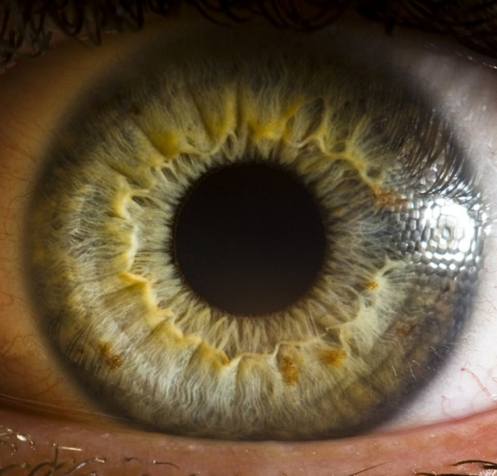 Augenfarbe Bedeutung auge
