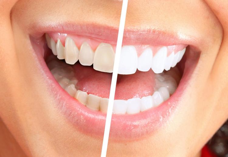 kokosöl wirkung ist kokosöl gesund weiße zähne vorher nachher
