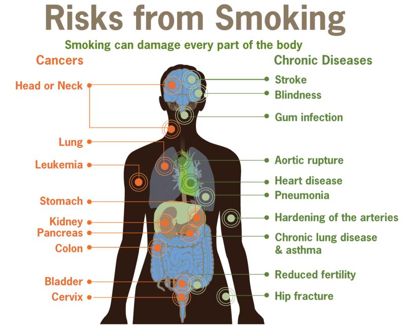 Herzanfall vorbeugen Rauchen Risiken