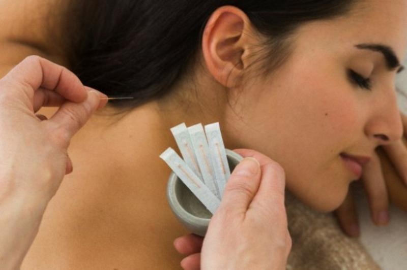 Chinesische Akupunktur Nadeln chinesische Medizin heilende Methoden