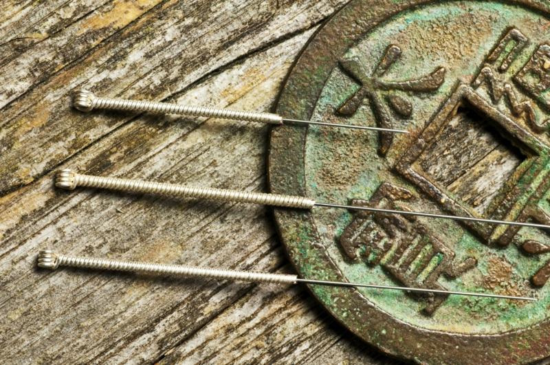 Chinesische Akupunktur Nadeln chinesische Medizin