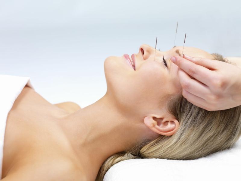 Chinesische Akupunktur Punkte Gesicht chinesische Medizin