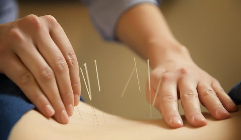 Chinesische Akupunktur chinesische Medizin gesund leben