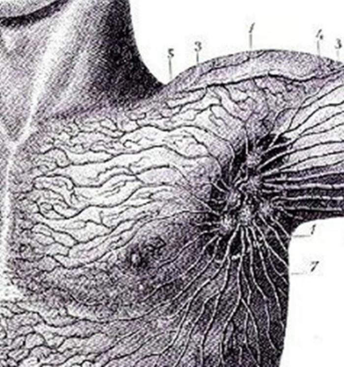 wo sind die lymphknoten dunkel 3