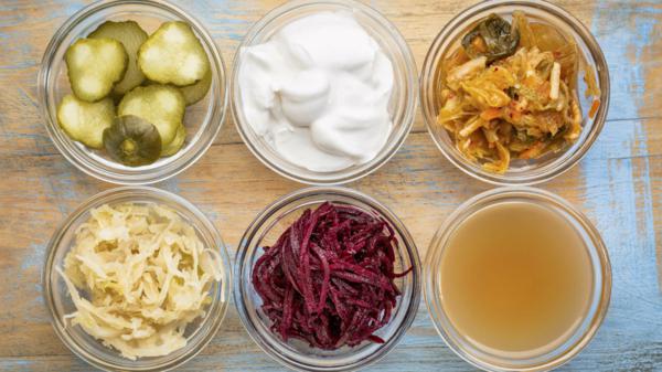 verschiedene-schüssel-mit-tollen-probiotika