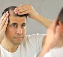 Was hilft gegen Haarausfall – die wichtigsten Methoden und Alternativen