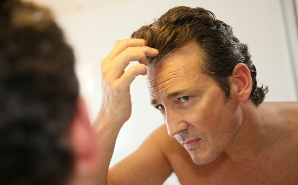 haarausfall haartransplantation bei männern