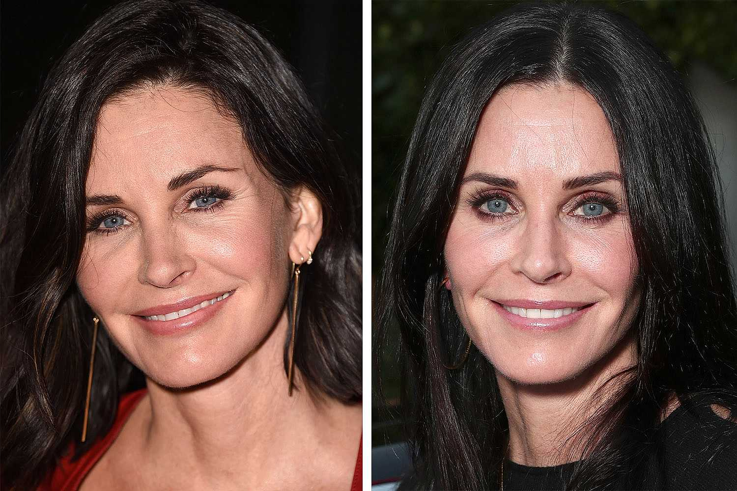 courteney cox operation schönheits op
