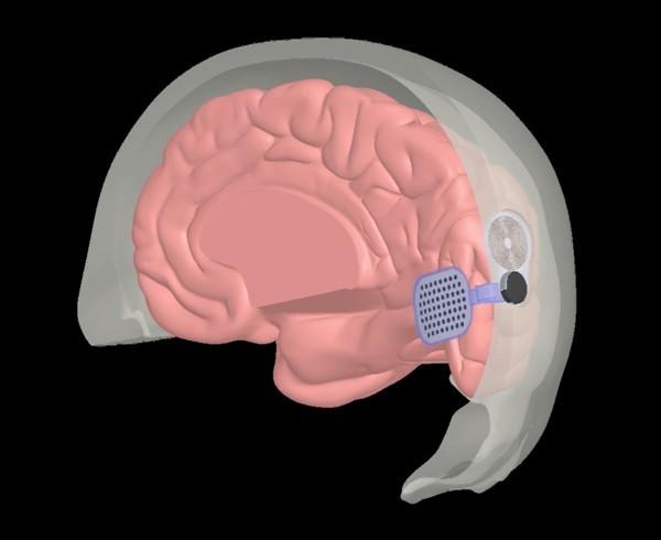 Experimentelles Implantat kann Blinden das Sehvermögen wiederherstellen orion implantat im gehirn