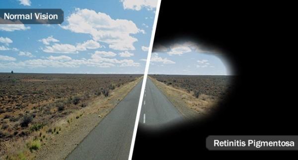 Experimentelles Implantat kann Blinden das Sehvermögen wiederherstellen retinitis pigmentosa effekte