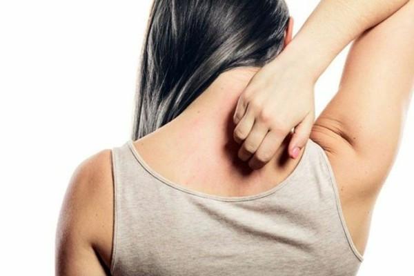 Apfelallergie Symptome Hautszmptome Ausschlag alte Apfelsorten