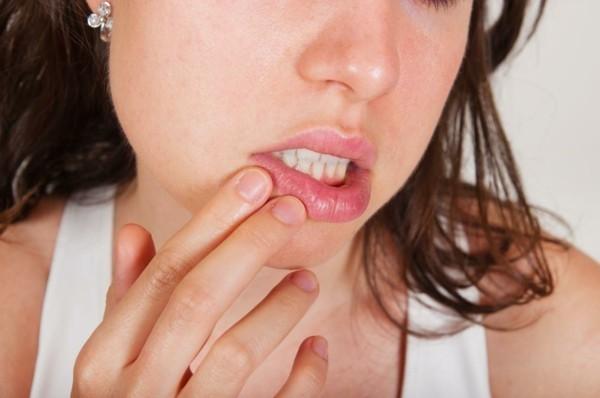 Apfelallergie Symptome Lippen Schwellungen Apfelsorten