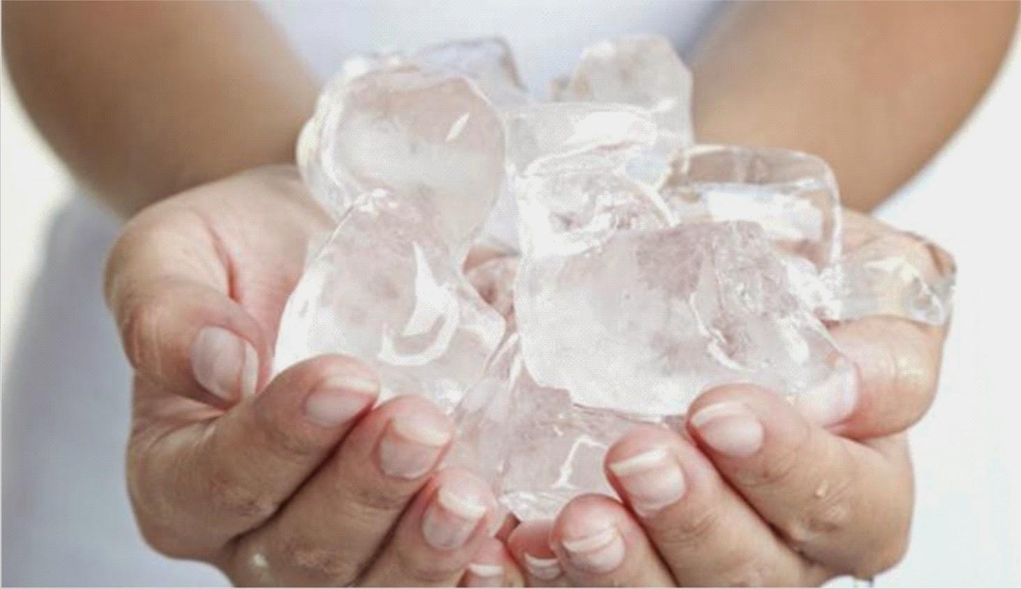 Kalte Hände eisklate Hände