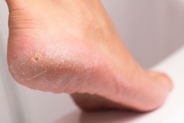 Hornhaut entfernen Schwielen Füße behandeln