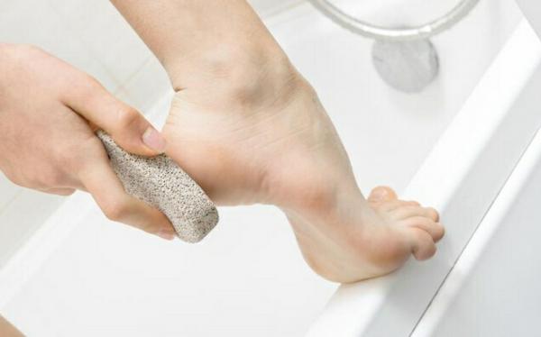 Hornhaut und Schwielen an den Füßen behandeln
