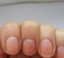Brüchige Nägel – warum kommt es dazu und was kann man dagegen tun?