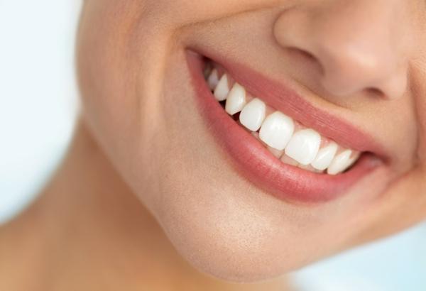 zahnprophylaxe weiße zähne