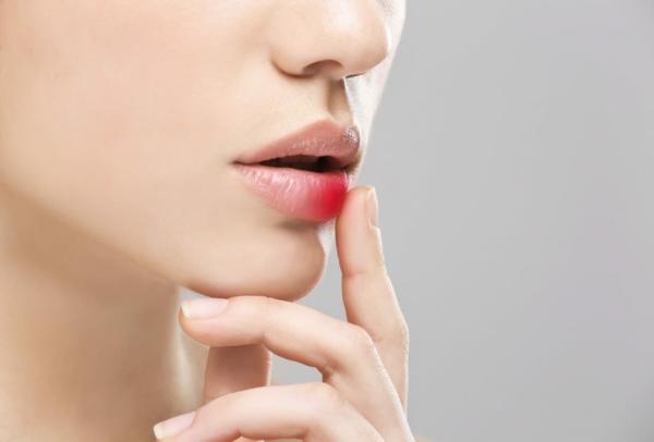 Lippenherpes Hausmittel Was hilft gegen Fieberbläschen
