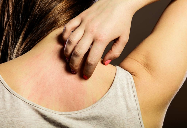 Was hilft gegen Juckreiz jukende Haut Hausmittel