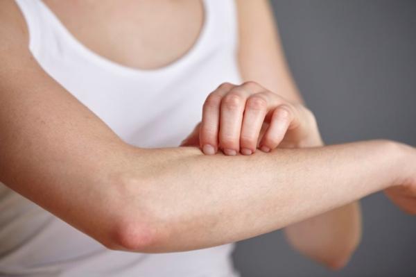 Was hilft gegen Juckreiz jukende Haut Symptome