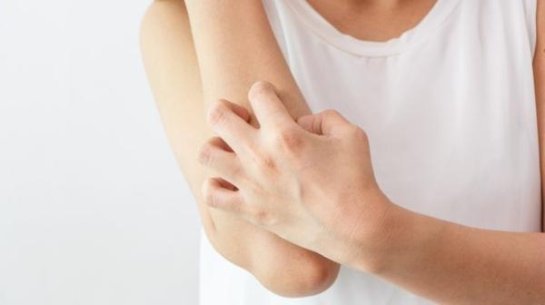 Was hilft gegen Juckreiz jukende Haut behandeln