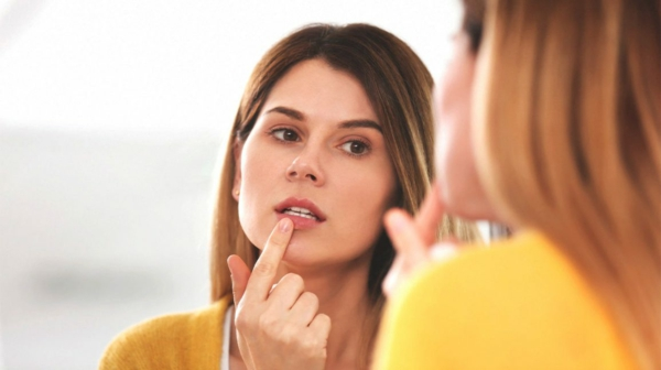 woman-cold-sore-face-mirror-1296x728-header-1296x728