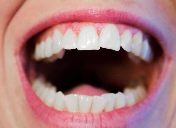 συμβουλές για υγιή ούλα και ένα όμορφο χαμόγελο καλή στοματική υγιεινή λευκά δόντια. φυλάσσεται. Αυτό παρέχει ένα κατάλληλο περιβάλλον για την ανάπτυξη πολλών βακτηρίων, τα οποία στη συνέχεια μπορούν να μεταφερθούν από τη βούρτσα απευθείας στα δόντια και τα ούλα σας, γεγονός που αυξάνει μόνο τον κίνδυνο λοιμώξεων των ούλων. Επομένως, είναι καλή ιδέα να αλλάζετε τη βούρτσα κάθε 2-3 μήνες και επίσης να πλένετε το κύπελλο οδοντόβουρτσας πολλές φορές την εβδομάδα. </p> <h3 style=