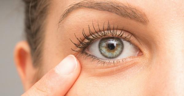Rizinusöl für schöne Haut und Haare Gerstenkorn behandeln
