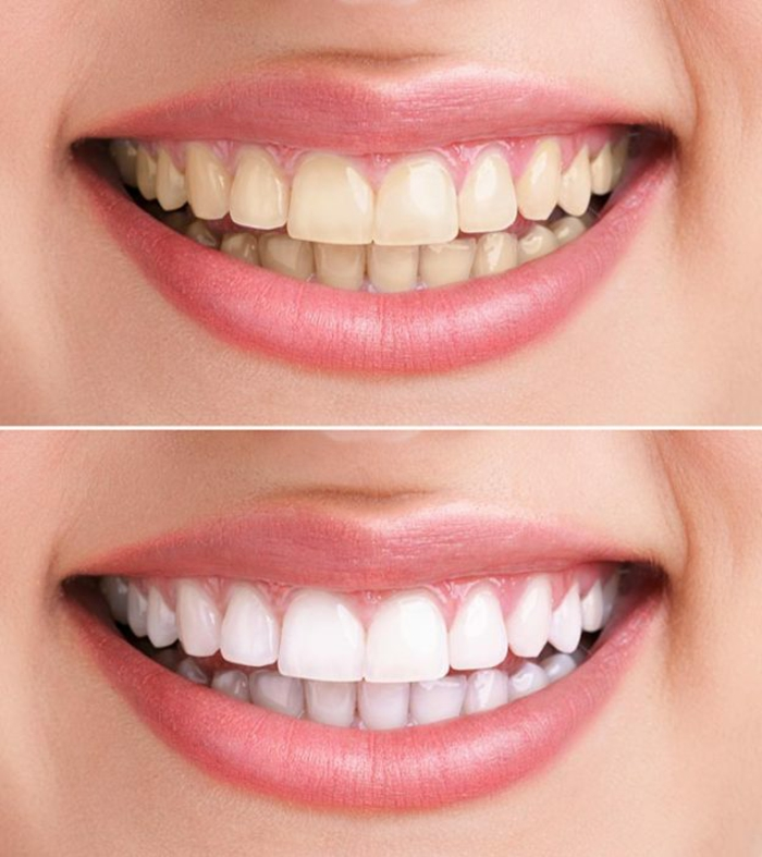 wasserstoffperoxid 3% prozent zahn