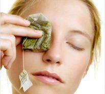 Tränensäcke entfernen- Welche Hausmittel können entgegenwirken?
