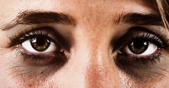 tränensäcke entfernen hausmittel augenringe tief