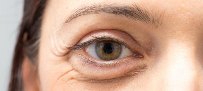 tränensäcke entfernen hausmittel augenringe