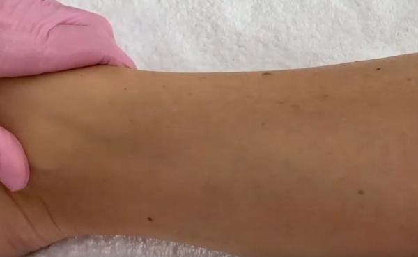waxx warmwachsperlen haarentfernung test 5