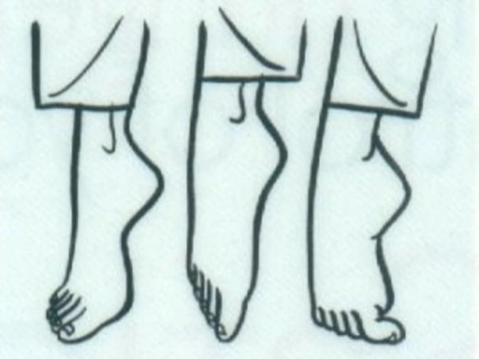Plattfüsse Übungen plattfuß behandlung und gymnastik
