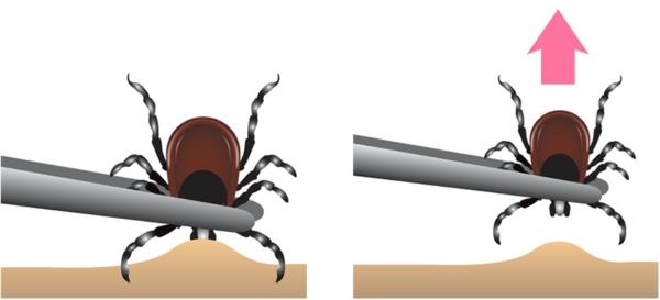 Zecke entfernen Zeckenbisspinzette richtig verwenden