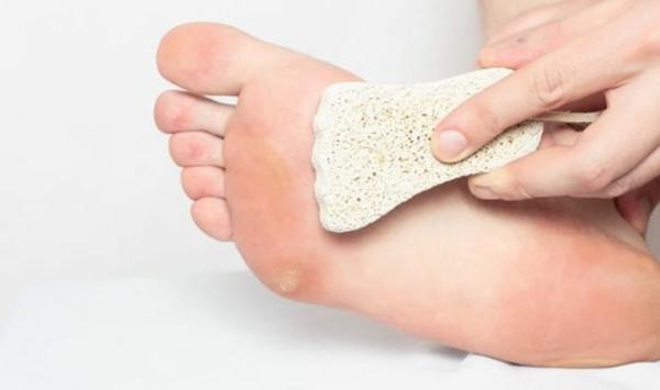 Hühnerauge loswerden Fußpflege Hornahaut entfernen Biemsstein