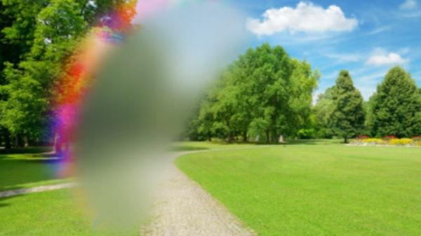 Migräne mit Aura Symptome sensorische Störungen Sehveränderungen