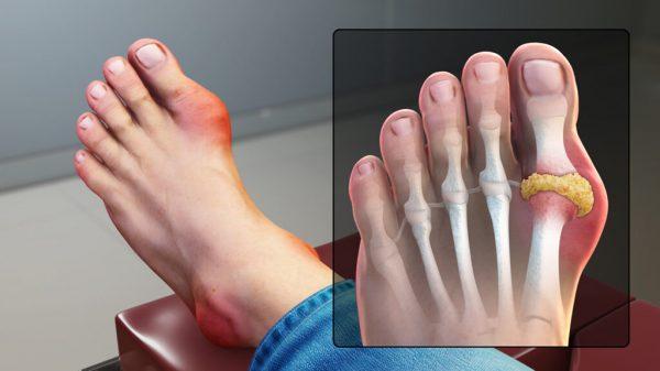 Symptome Gicht - Füsse behandeln