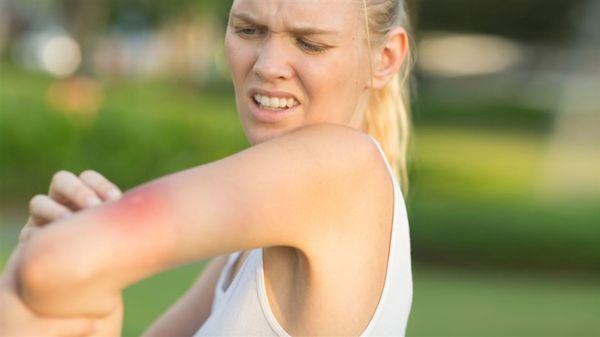 O que atrai os mosquitos às dicas científicas